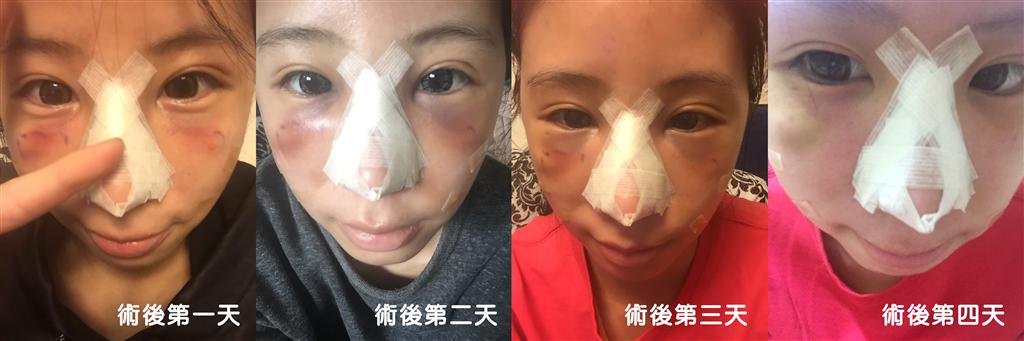 台中隆鼻-恢復期中-峻美診所