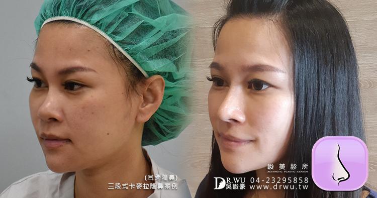 【Goretex卡麥拉三段式隆鼻】改變鼻骨寬敲鼻骨隆鼻,創造精緻美型鼻|峻美診所