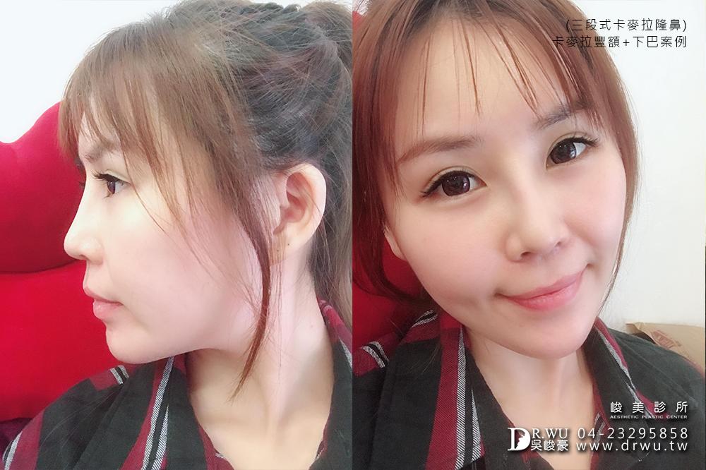 【台中豐額手術】女神分享前額植入卡麥拉材質+卡麥拉下巴+三段式卡麥拉隆鼻!!