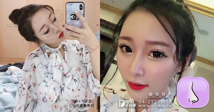 三段式卡麥拉隆鼻】韓式隆鼻+自體耳軟骨隆鼻,創造亞洲美鼻~ |臉部自體脂肪補脂|『Lin Lin』女神案例