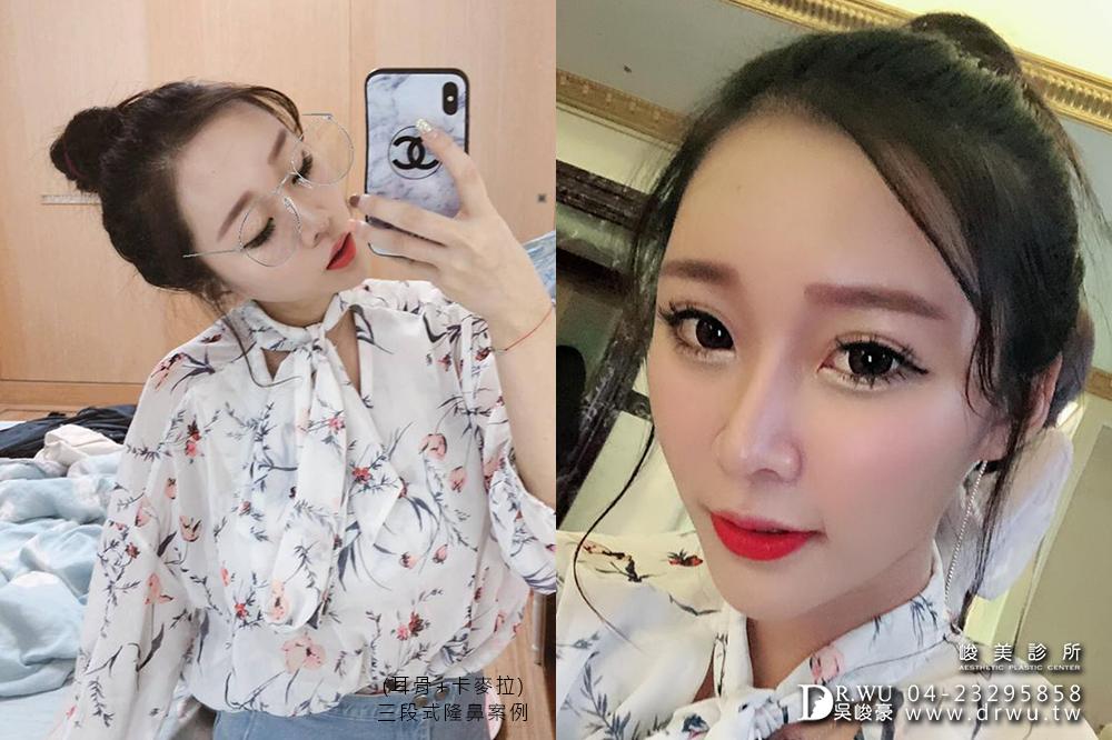 【三段式卡麥拉隆鼻】韓式隆鼻+自體耳軟骨隆鼻,創造亞洲美鼻~|臉部自體脂肪補脂|峻美診所