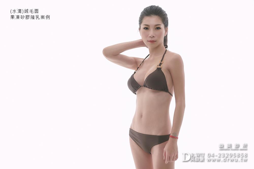 【水滴型隆乳】隆乳手術過程,Tina女神來分享|水滴型果凍矽膠隆乳|峻美診所