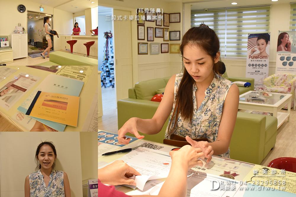 【台中隆鼻】韓式隆鼻恢復期好放心,三段式隆鼻推薦|峻美診所