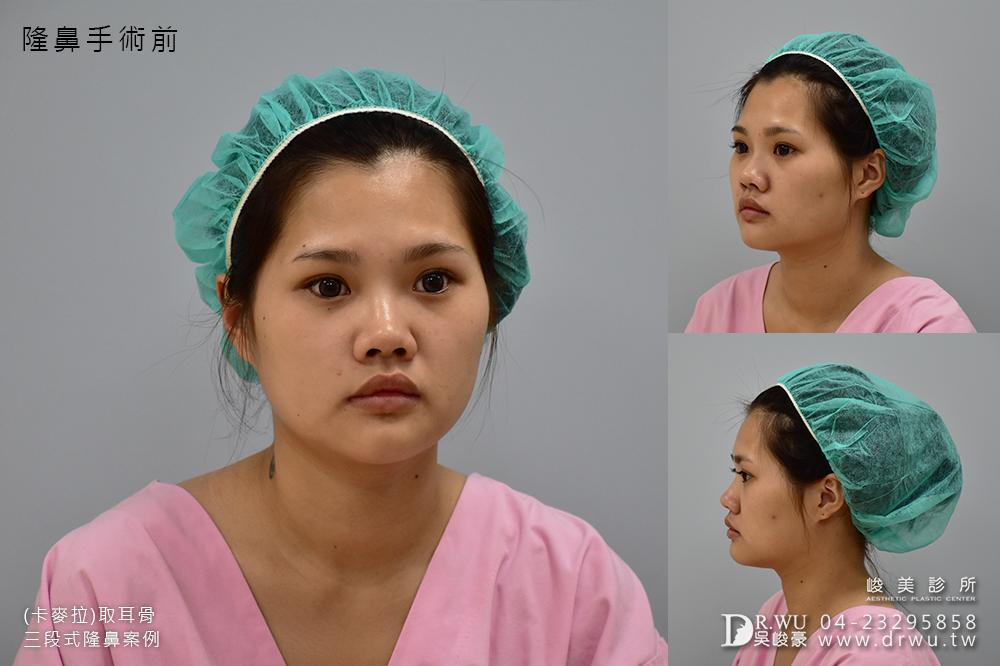 【卡麥拉隆鼻】隆鼻手術一直是我從小到大的願望!|取耳骨三段式隆鼻|峻美診所