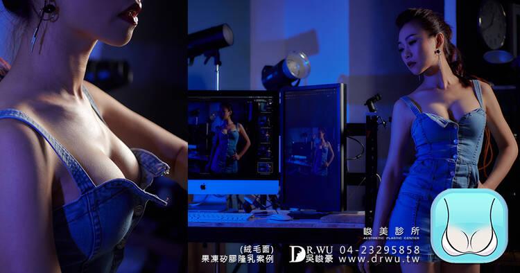 【絨毛面隆乳手術】 產後少婦晉升美胸大罩杯,自然垂墜美胸型!|台中隆乳手術
