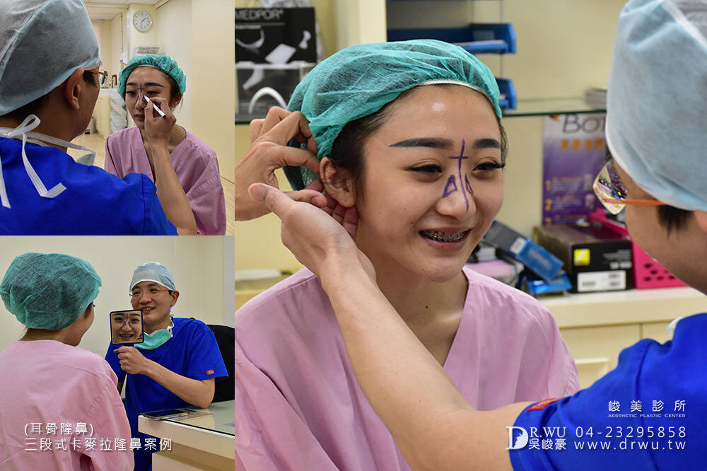 【卡麥拉三段式隆鼻=卡麥拉鼻模+耳軟骨+鼻中隔延長】高挺美鼻的誕生,調整鼻頭角度是大重點!|峻美診所