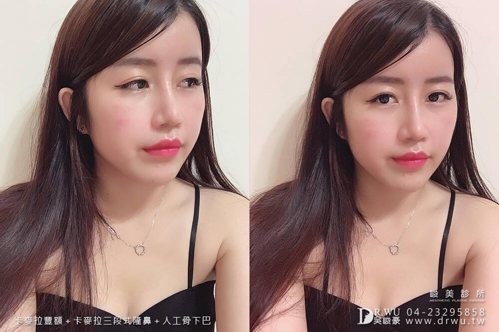 【面部整形】女神感的三種手術一次完成|卡麥拉豐額+卡麥拉三段式隆鼻+人工骨墊下巴|峻美診所