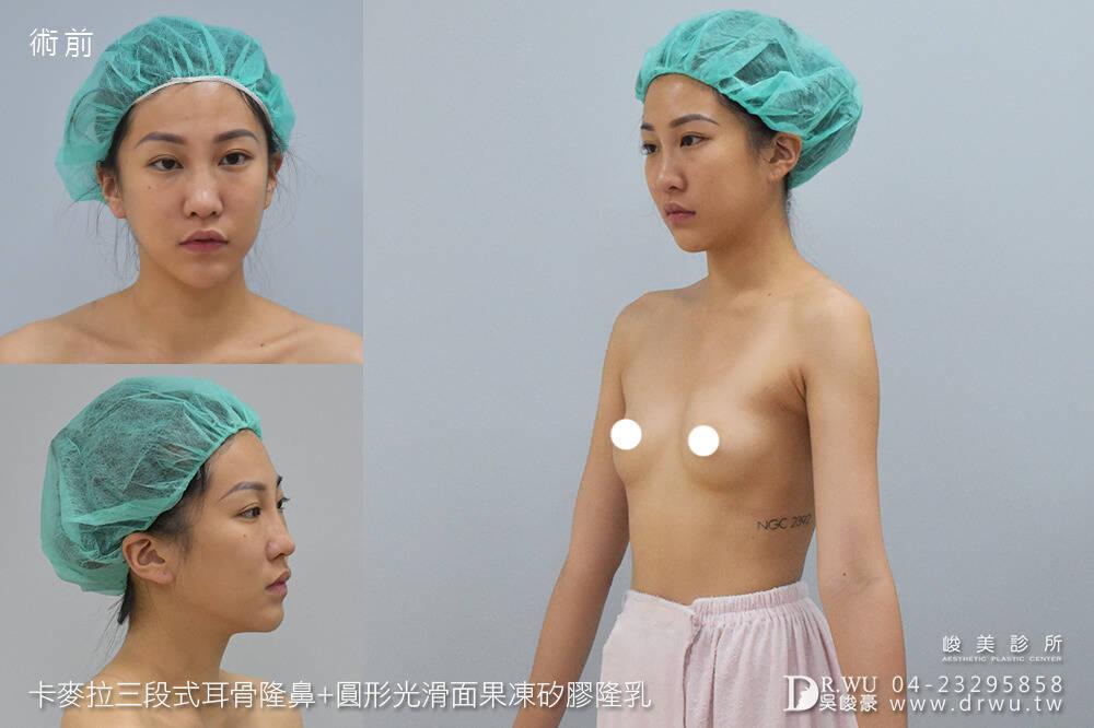 【新一代峻美女神】有一種整形之美,叫做質感美|卡麥拉三段式耳骨隆鼻+圓形光滑面果凍矽膠隆乳|峻美診所