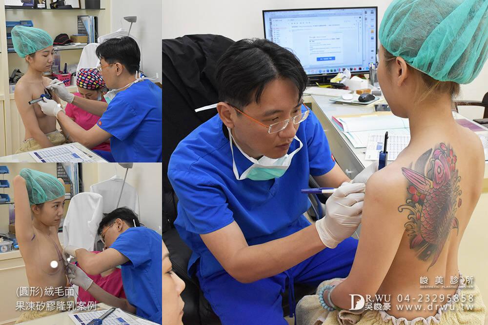 【圓形絨毛面果凍矽膠隆乳手術】產後隆乳免按摩。360度美胸無死角|峻美診所