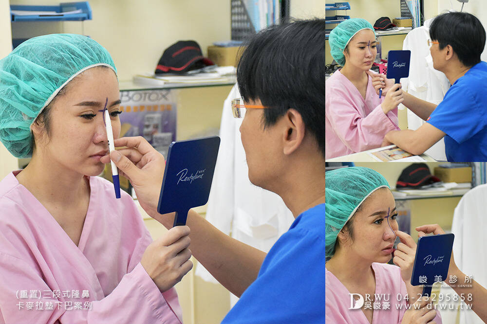 【重置隆鼻】隆鼻重做交給峻美,二次隆鼻後更完美!|三段式卡麥拉隆鼻手術+卡麥拉下巴|峻美診所
