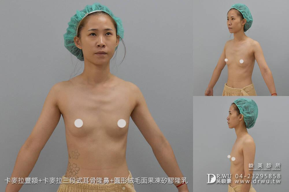 【額鼻胸】整形出屬於個人化風格的美|卡麥拉豐額+卡麥拉隆鼻+果凍矽膠隆乳手術|峻美診所