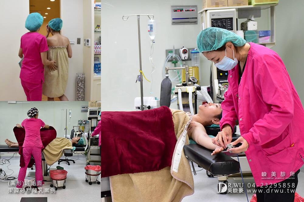 【隆乳案例】加厚型調整型內衣通通丟掉,美美的胸型免按摩~|台中隆乳手術|峻美診所