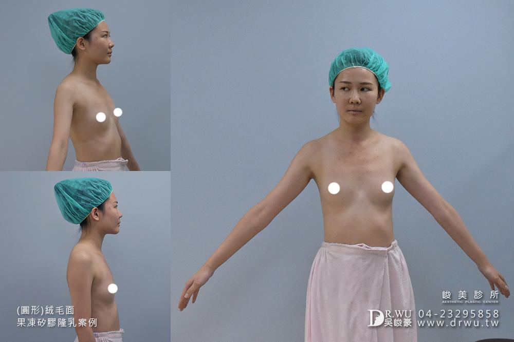 【隆乳推薦】照顧隆乳手術後的小傷口超簡單~|(圓形)絨毛面果凍矽膠隆乳手術|峻美診所