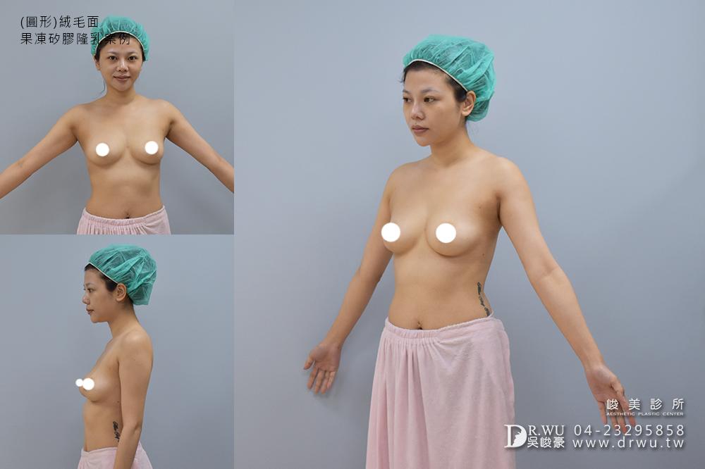 【隆乳案例】美胸女神,隆乳手術過程分享|圓形絨毛面果凍矽膠隆乳|峻美診所
