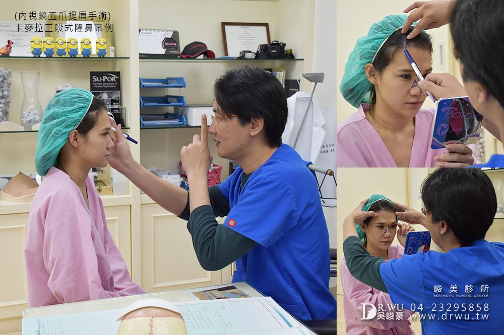 【五爪拉皮提眉】改善眉壓眼,創造明亮眼神|內視鏡五爪提眉+卡麥拉三段式隆鼻|峻美診所
