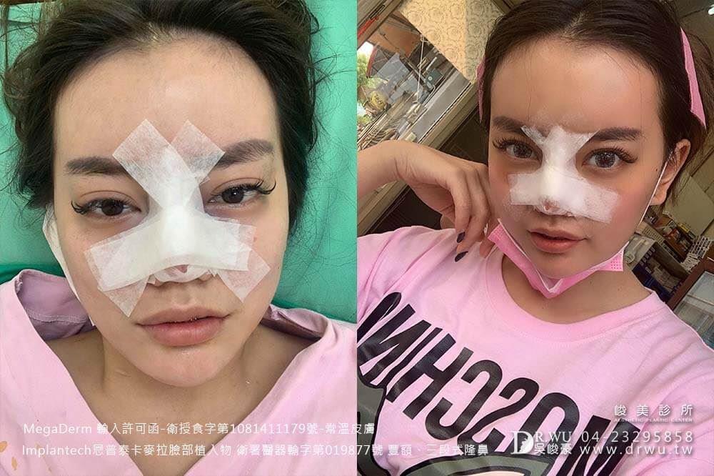 【豐額+隆鼻】精緻臉部曲線,氣質大提升!|卡麥拉材質、常溫皮膚材質|峻美診所