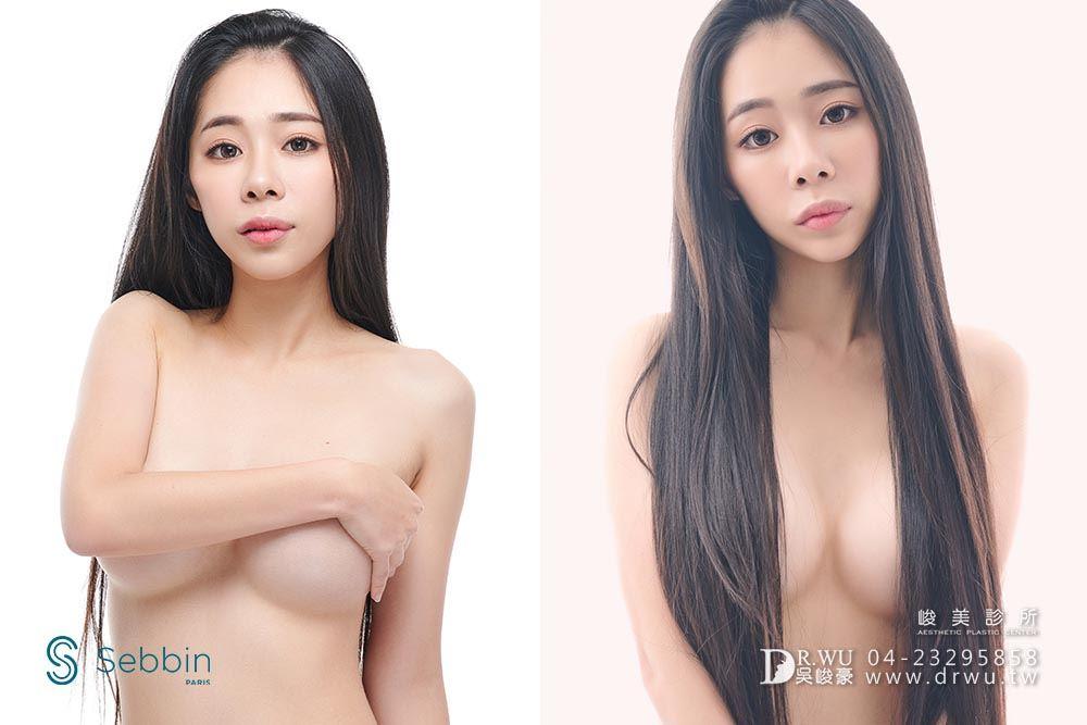 【台中隆乳】柔滴?它是賽彬!是乳房植入物! |賽彬Sebbin隆乳案例|峻美診所