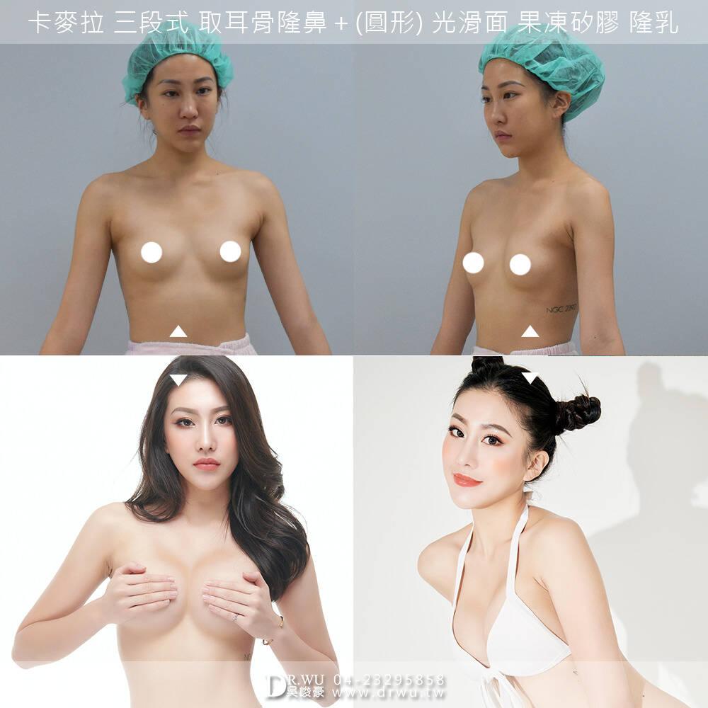 【台中隆乳。實績經驗強大。胸之國度】 #隆乳 #峻美診所 #吳峻豪醫師 #隆乳案例