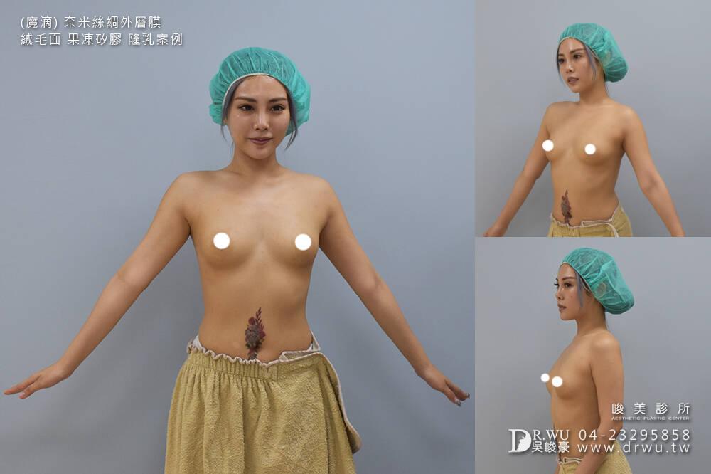 【Motiva波力媚隆乳】魔滴~讓您拒絕無效的豐胸產品,美型大胸激活提升|內視鏡果凍矽膠隆乳手術|