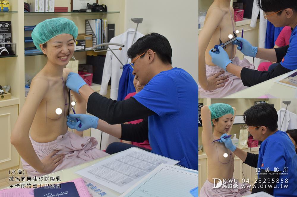 【Mentor曼陀隆乳】如同水滴形狀般的美胸,免按摩保養超便利!|水滴內視鏡果凍矽膠隆乳手術|