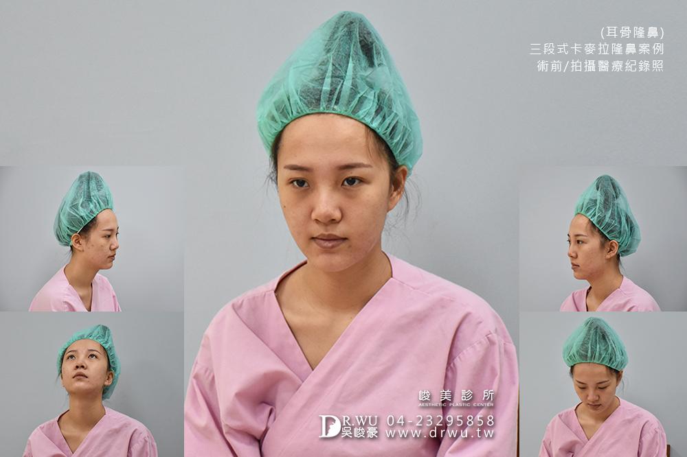【三段式耳骨隆鼻】醫師吳峻豪隆鼻超高技術,卡麥拉隆鼻恢復期免擔心|峻美診所