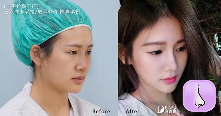 三段式隆鼻利用耳軟骨及卡麥拉隆鼻材質|隆鼻|下巴|吳峻豪醫師|峻美診所