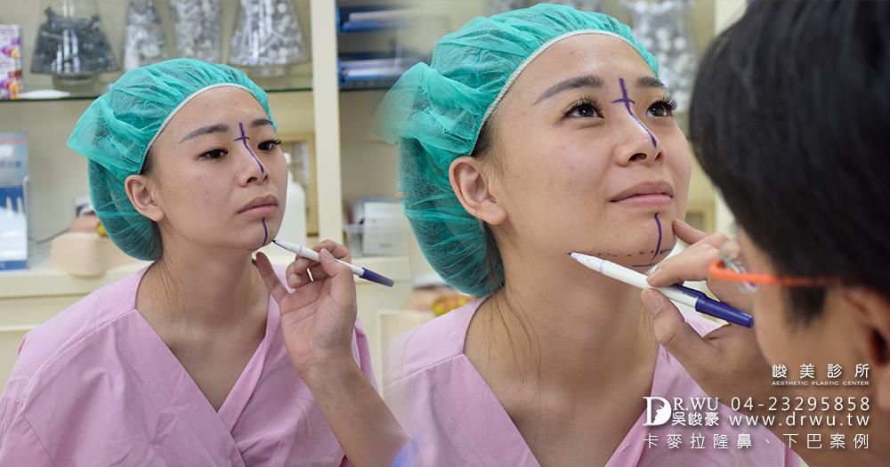 【三段式卡麥拉隆鼻】醫師吳峻豪隆鼻後,讓我零修圖臻美麗|人工骨墊下巴|峻美診所