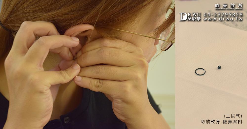 隆鼻手術前整理│台中肋軟骨隆鼻手術案例-峻美診所