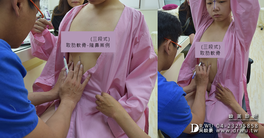 在取肋軟骨的位置坐上手術標記│自體肋軟骨隆鼻手術前準備