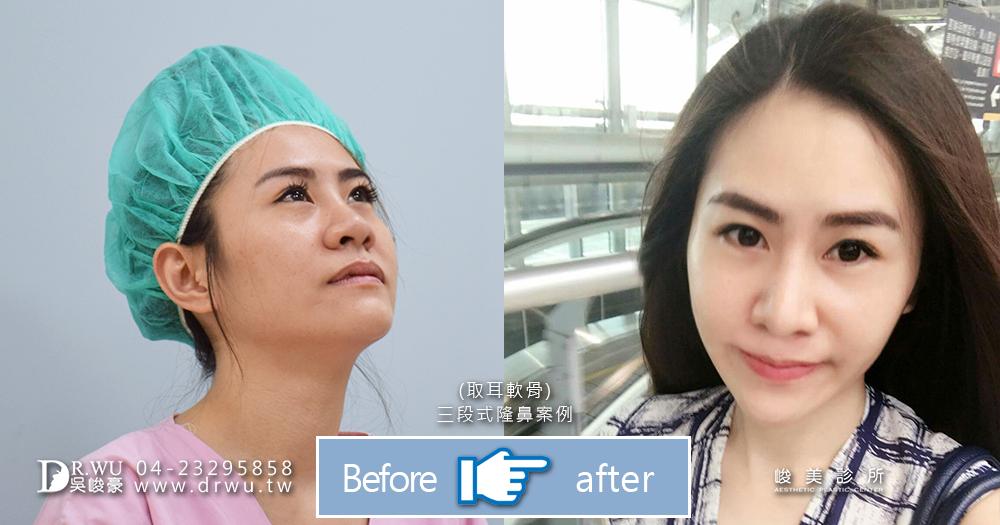 台中耳骨隆鼻手術前後比較│台中耳骨隆鼻手術