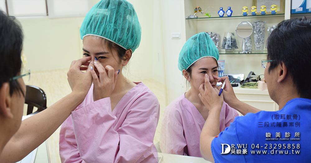 自體耳骨隆鼻手術方式│台中耳骨隆鼻手術前