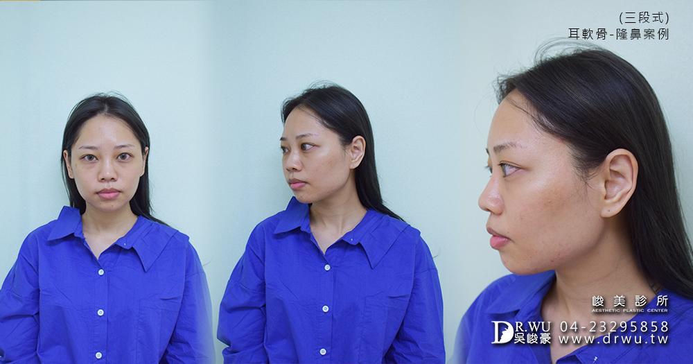 三段式耳軟骨隆鼻手術前│三段式耳軟骨隆鼻推薦