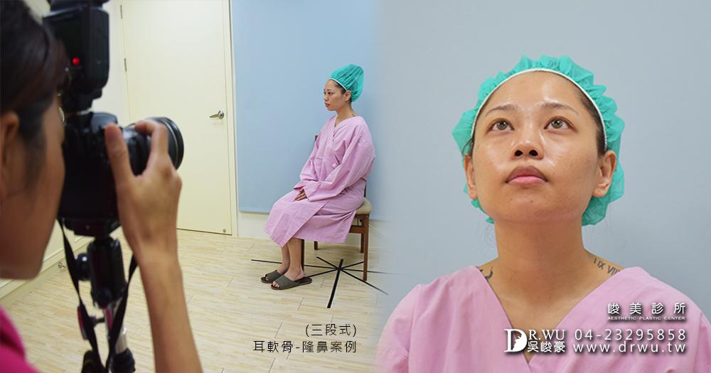 三段式耳軟骨隆鼻手術前更換手術衣│三段式耳軟骨隆鼻手術準備