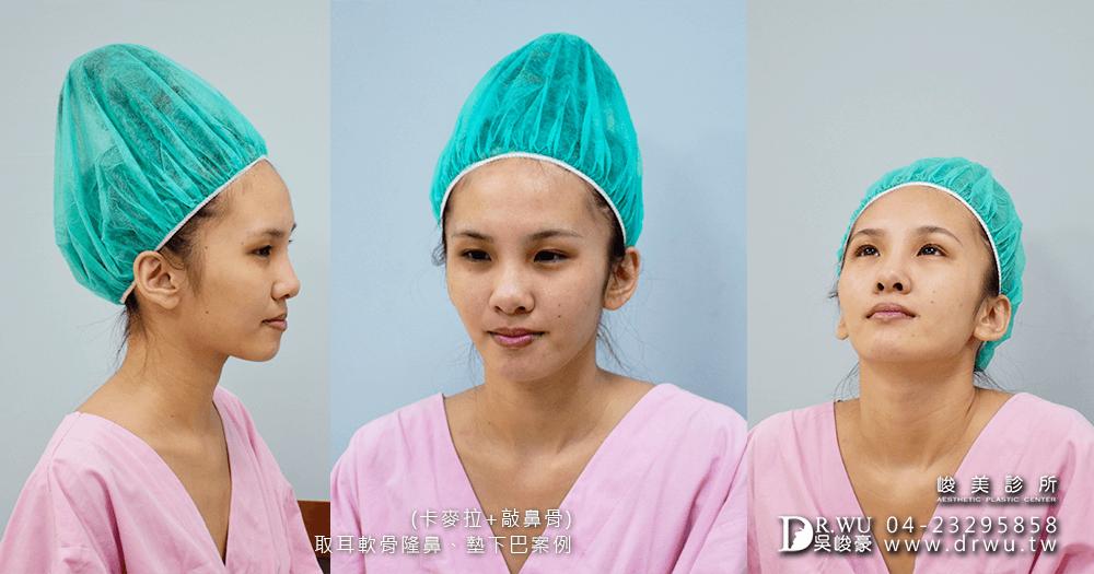 進行術前拍攝│三段式卡麥拉隆鼻手術前