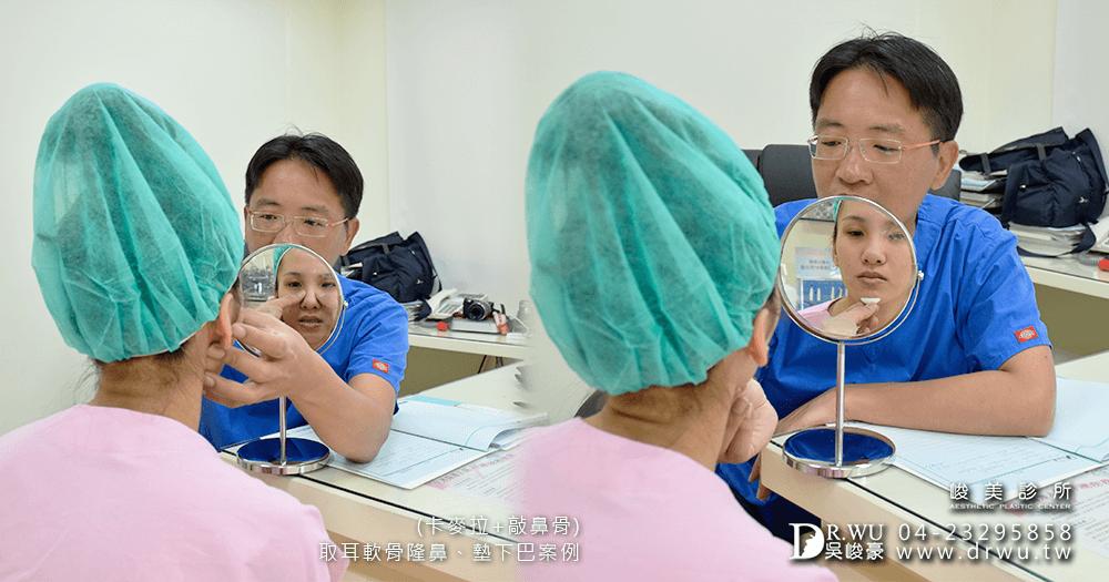 討論卡麥拉隆鼻手術│峻美診所卡麥拉隆鼻手術