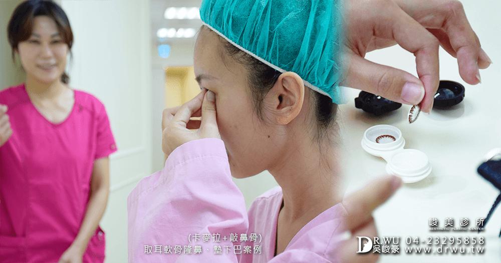 準備進行三段式卡麥拉隆鼻手術│三段式卡麥拉隆鼻手術前準備