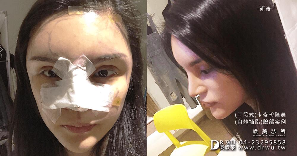 三段式自體肋骨隆鼻手術拆線│台中段式自體肋骨隆鼻推薦