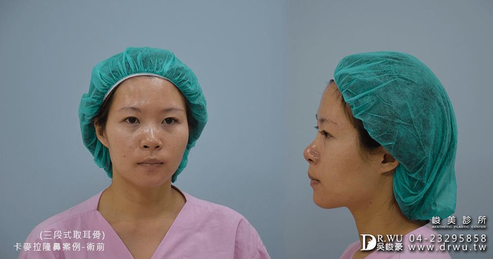進行卡麥拉三段式隆鼻術前拍攝│卡麥拉三段式隆鼻手術前