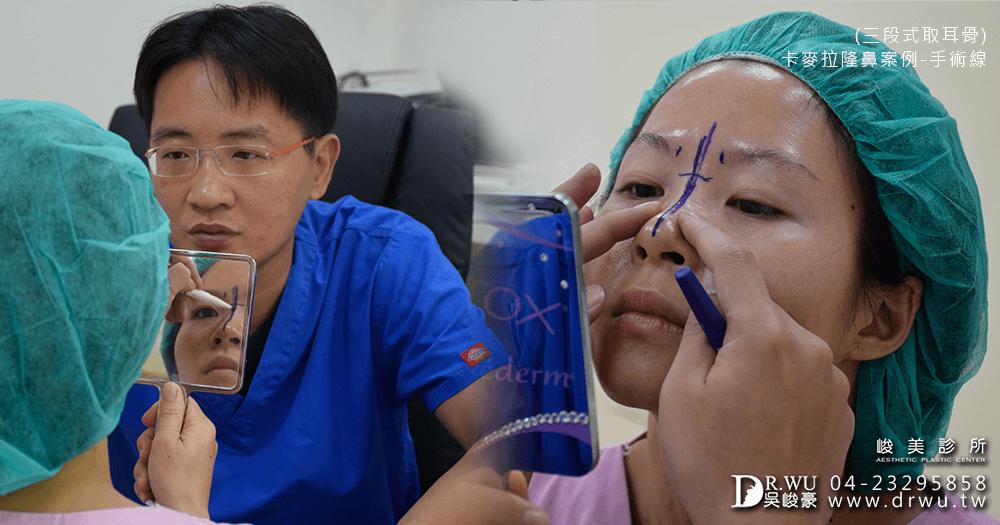 討論卡麥拉三段式隆鼻手術│峻美診所卡麥拉三段式隆鼻