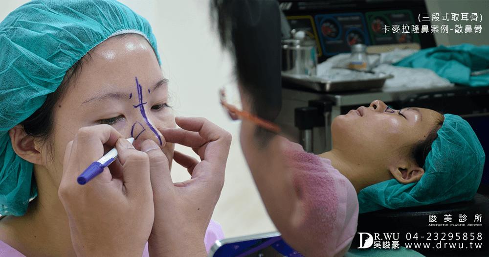 準備進行卡麥拉三段式耳骨隆鼻手術│台中卡麥拉三段式耳骨隆鼻手術前準備