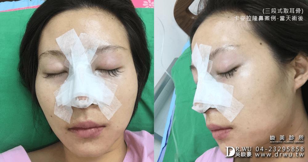 卡麥拉三段式隆鼻手術後│台中卡麥拉三段式隆鼻推薦
