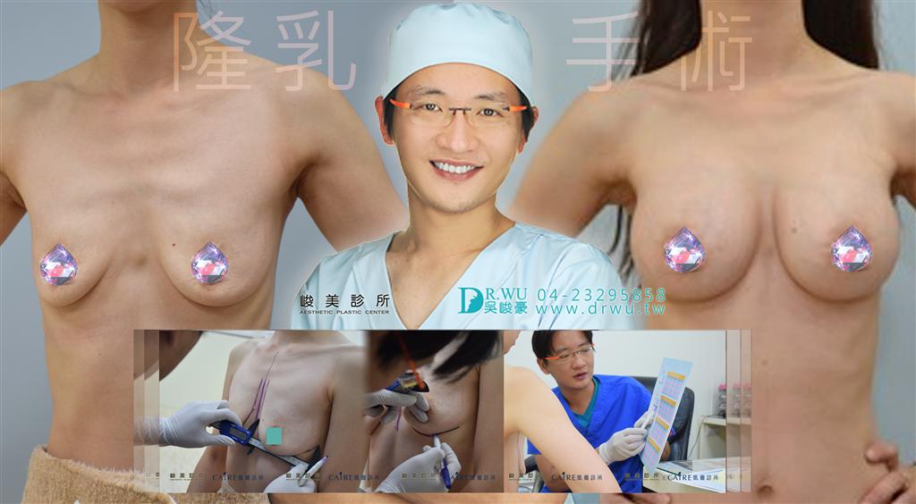 台中隆乳手術│台中隆乳手術推薦