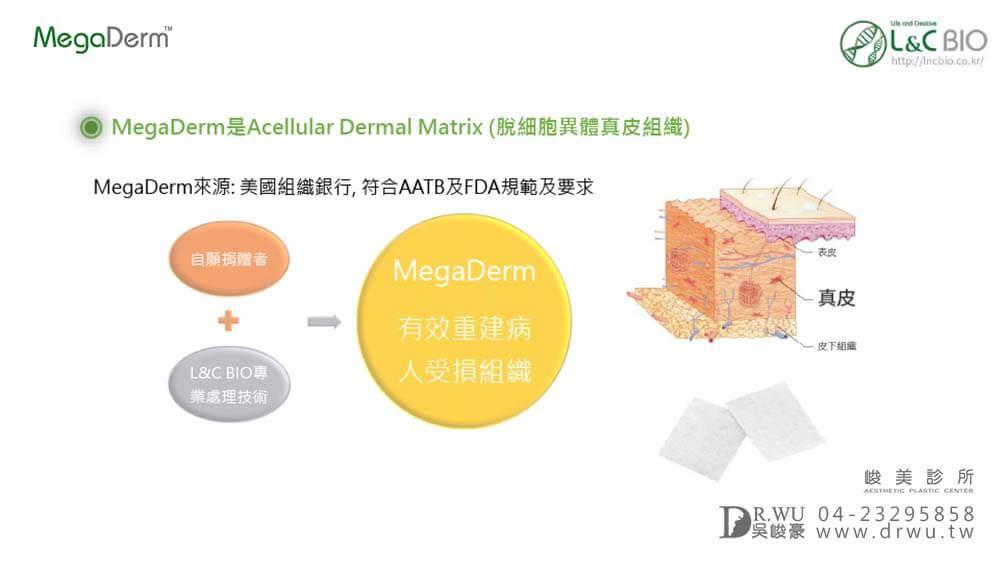 MegaDerm 常溫皮膚(真皮),隆鼻材質|台中峻美診所