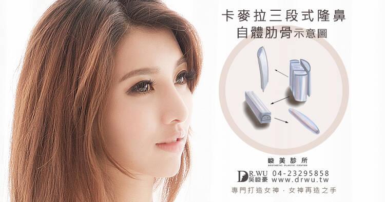 韓式二段式隆鼻、三段式隆鼻有什麼差別呢?
