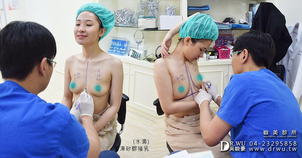 術前隆乳位置畫線|台中隆乳細心的解說|台中隆乳推薦峻美診所