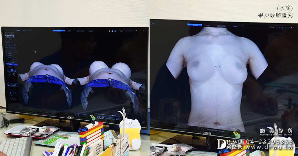 台中隆乳3D模擬系統模擬隆乳手術後效果|台中隆乳手術推薦|峻美診所