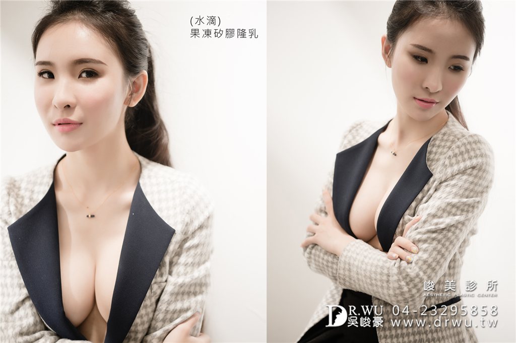 擁有性感美麗兼具的胸型|台中隆乳手術推薦水滴型果凍矽膠|台中隆乳手術|峻美診所